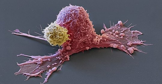 Раковые клетки умирают, когда вы едите эти 5 продуктов