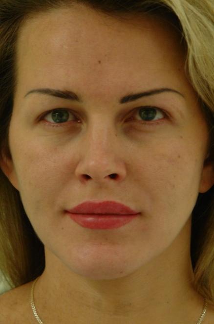 Возможности пластической хирургии для женской красоты