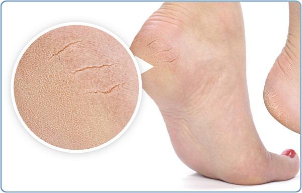 Виды лечения трещин на пятках