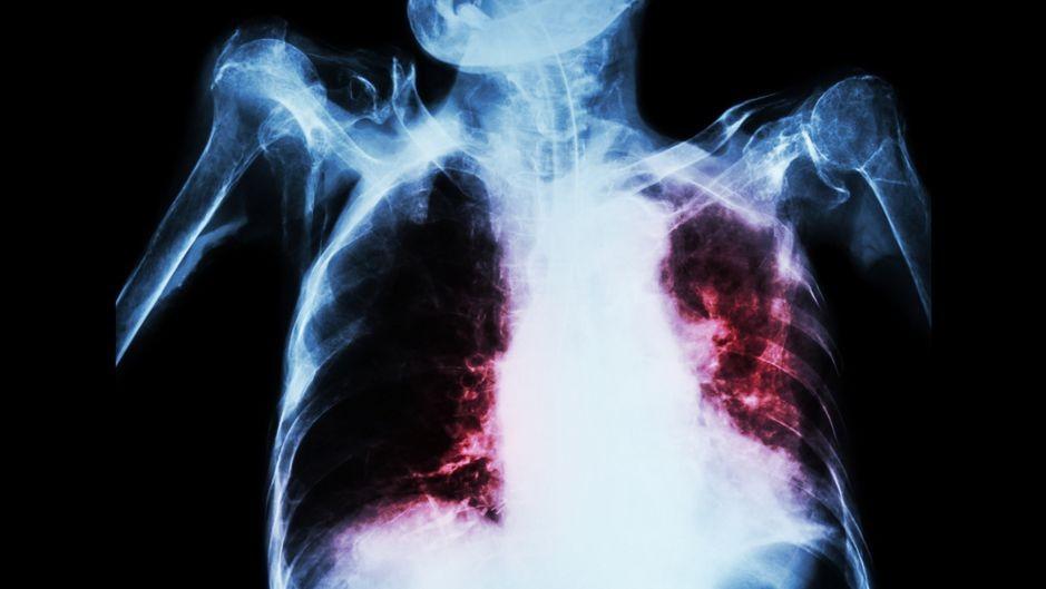 «Я поняла, как сильно хочу жить»: история борьбы с туберкулезом