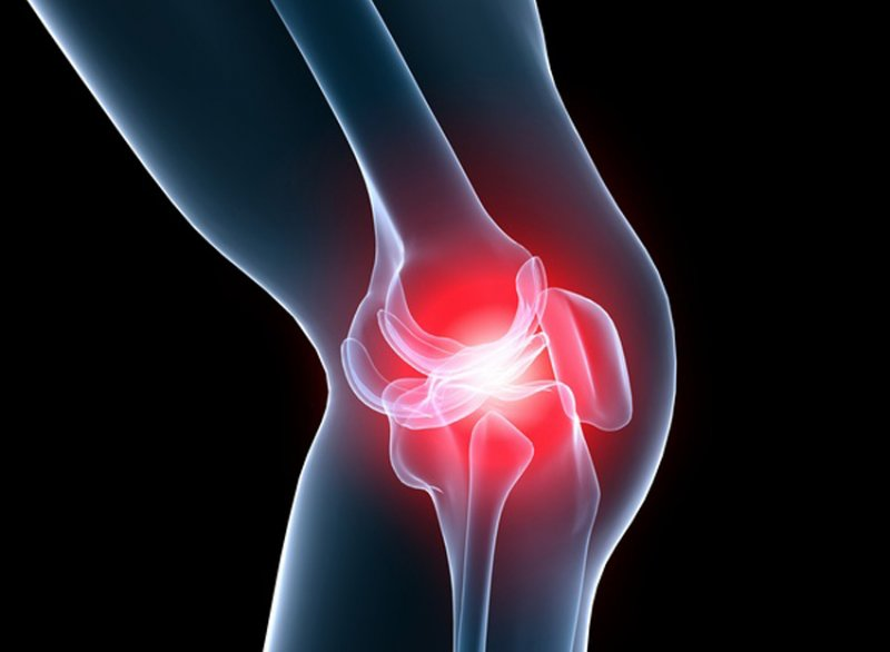 Можно ли вылечить артрит? Мой ответ – да!