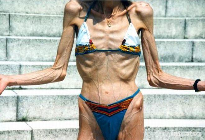 Очень худые девшуки