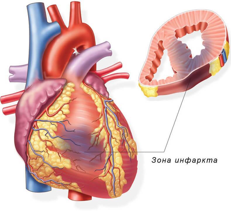 Инфаркт: 7 признаков, которы…