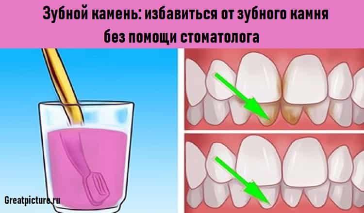 Зубной камень: избавиться от…