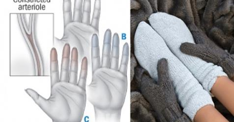 Предупреждающие признаки ваших холодных рук и ног, которые вы никогда не должны игнорировать
