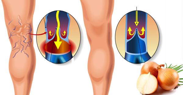 Как избавиться от варикоза и сосудистой сетки на ногах? Легкий способ