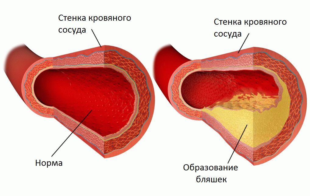 Холестериновые бляшки: какими бывают и как их найти