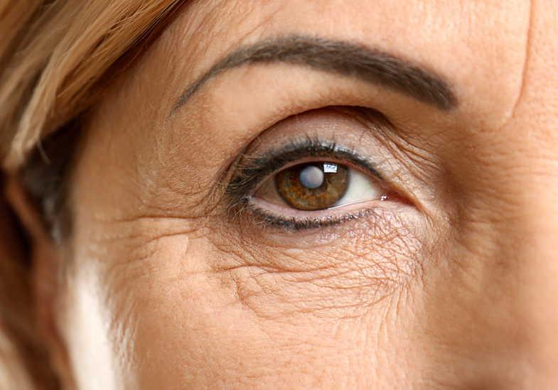 5 растений от катаракты. Эта болезнь поражает 55% людей после 50 лет!