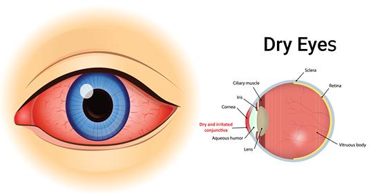 4 простых способа натурального лечения исцелить сухости глаз