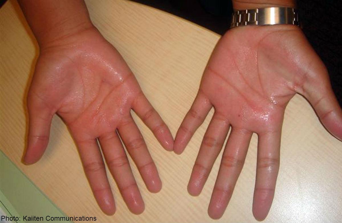 7 опасных болезней, которые можно определить по состоянию рук