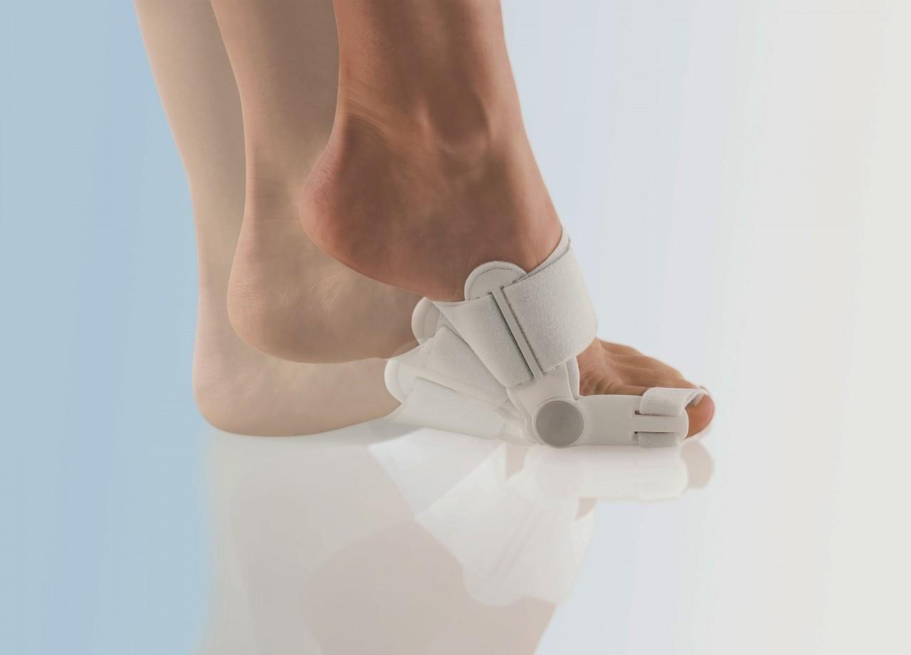 Что делать если болит косточка на ноге