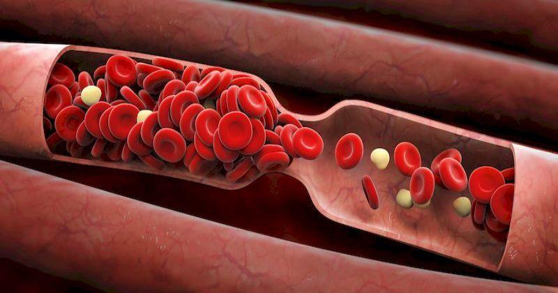 Тромб не подождет: 6 признаков, что в ваших венозных сосудах засел смертельно опасный сгусток крови…