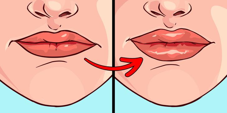 Что губы могут рассказать о вашем здоровье