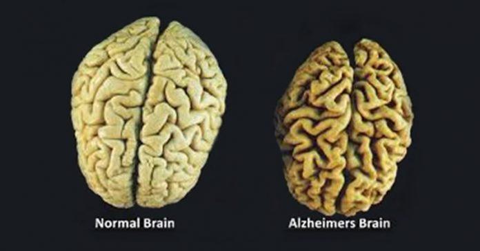 3 витамина, которые предотвращают потерю памяти