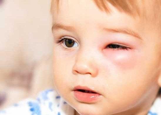 Как лечить ячмень у ребёнка?