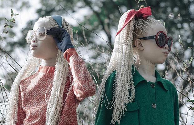 Близнецы-альбиносы покорили модную индустрию