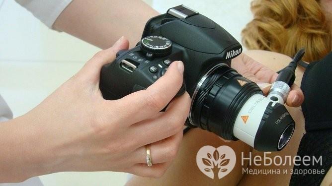 Дерматоскопия позволяет получить изображение родинки в десятикратном увеличении