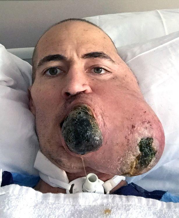 Мужчину, потерявшего лицо из-за опухоли, спас гениальный хирург без лица, инвалидность, новое лицо, операция, опухоль, саркома, удаление опухли, чудеса хирургии