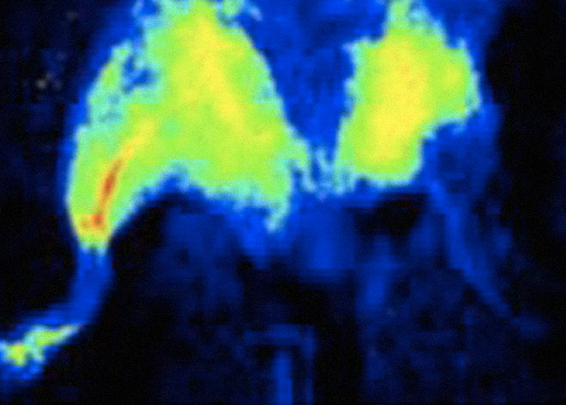 Наночип восстановил кровеносные сосуды в конечностях мышей