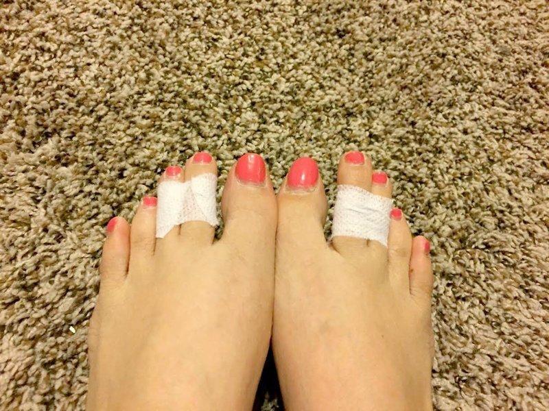 3. Узкий носок Лайфхак, массаж, обувь, помощь, пятна, узкая