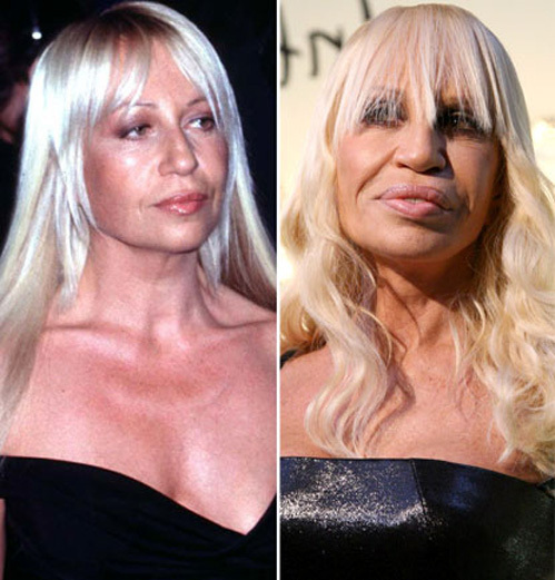 Donatella versace before after