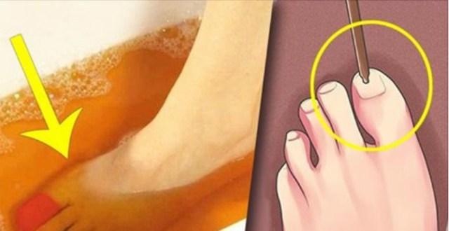 От грибка ногтей поможет избавиться йод — достаточно 3 процедуры. Рецепт внутри!