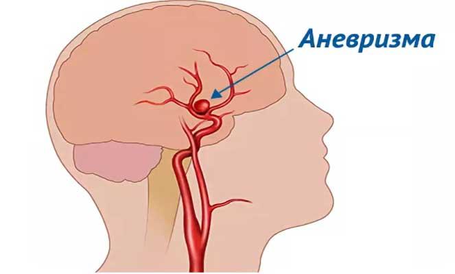 Мозговой хирург объясняет предупреждающие знаки аневризмы, которые вы никогда не должны игнорировать