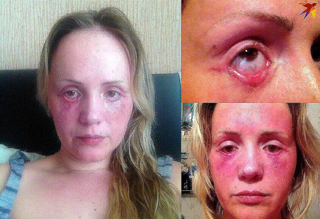 Так Евгения выглядела после второй операции.