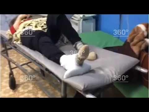 """В Башкортостане врачи """"вылечили"""" пенсионерке сломанную ногу шваброй и отправили домой"""
