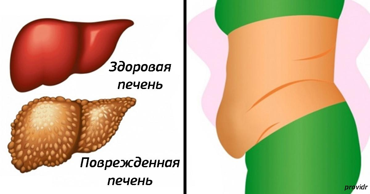 10 тревожных признаков, что ваша печень не справляется с токсинами