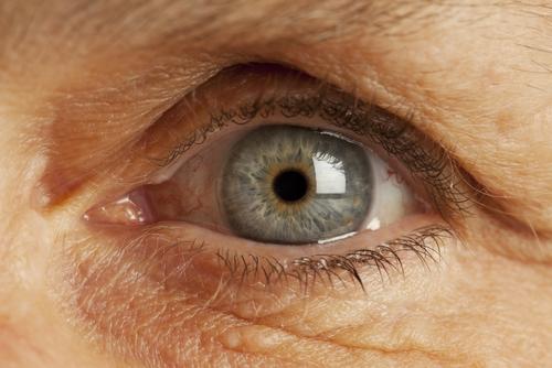 Инсульт и еще 7 заболеваний, которые можно распознать по глазам