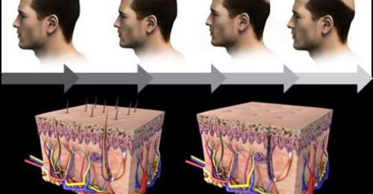 Основные причины выпадения волос у мужчин и как от этого избавиться