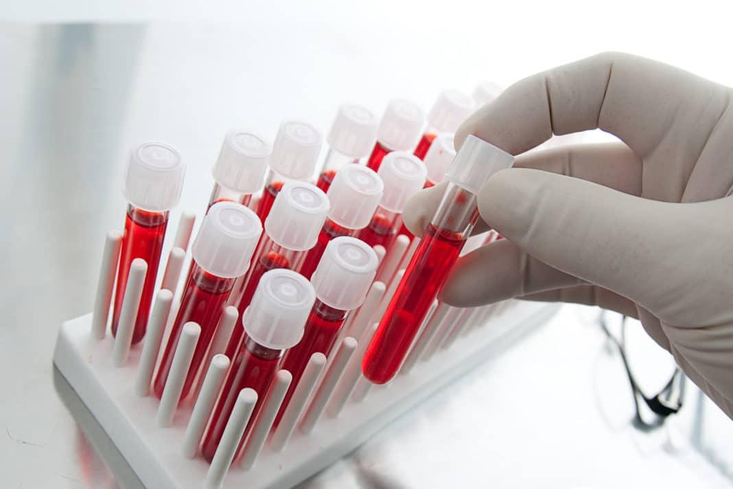 Можно ли принимать антибиотики перед сдачей анализа крови?