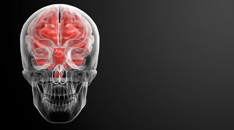 Тихий инсульт: 6 главных признаков, которые спасут вам жизнь