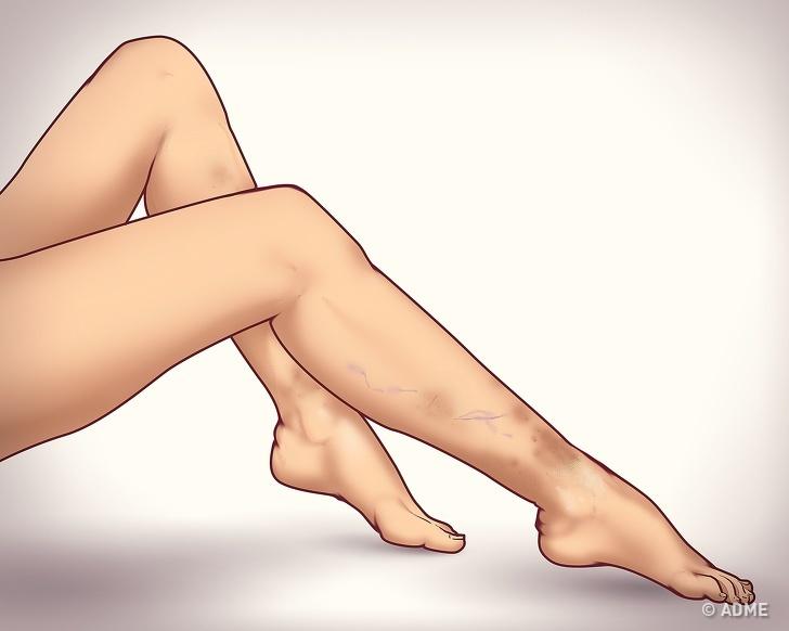 6 неочевидных признаков варикозной болезни ног