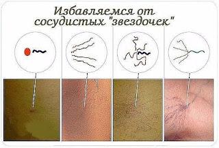 Сосудистые «звездочки» на коже (телеангиоэктазии). Лечение народными средствами