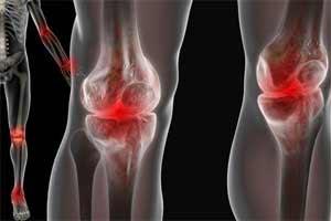 Как лечить болезни суставов