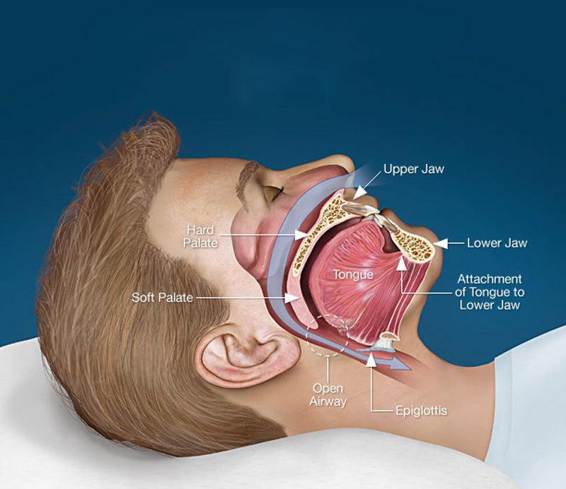Операция от храпа (хирургическое лечение) какие виды есть