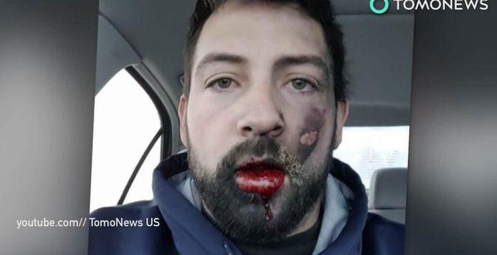 Вейпы взрываются во рту и вызывают рак легких