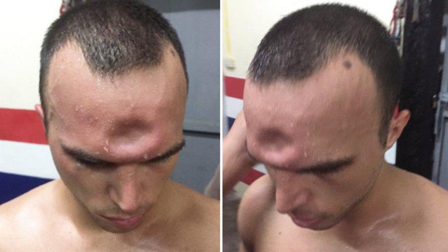 Тайский боксер получил необычную, но очень показательную травму