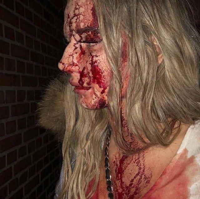 Девушка получила бутылкой по голове за то, что не позволила себя трогать ynews, домогательства, клуб, лапают, отказ, приставания