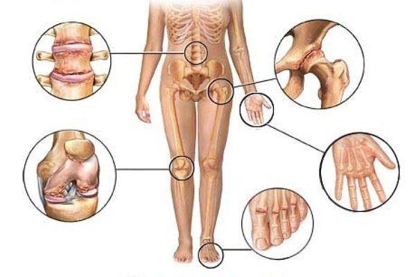 Это средство восстановит ваши кости и суставы. И избавит от боли в коленях