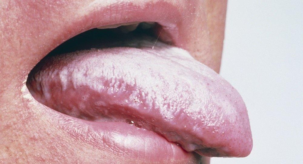 Белый налет на языке грибок чем лечить