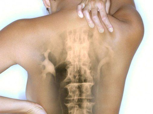 «Осевший» позвоночник - невидимая причина наших болезней