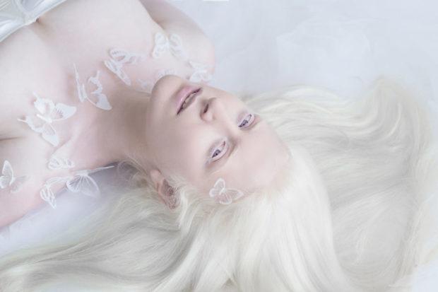 albinos_2