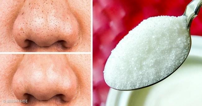 12 натуральных средств, которые помогут сохранить вашу кожу молодой