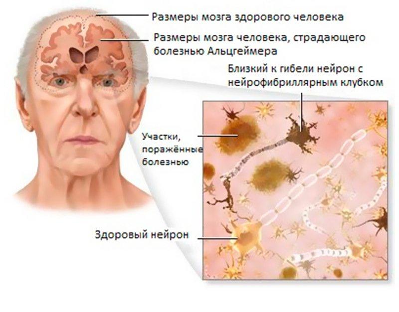 Что вызвает болезнь Альцгеймера