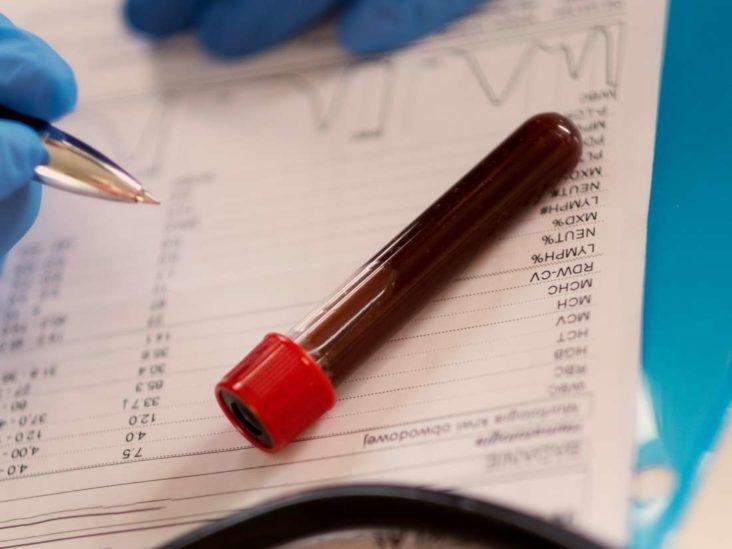 Причины высокого билирубина