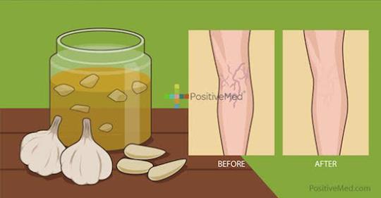 Домашнее чесночное масло для уменьшения воспаления при варикозном расширении вен