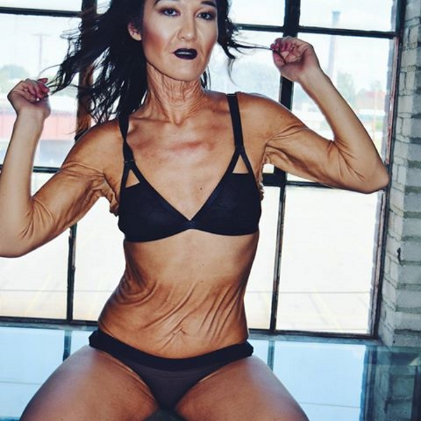 С детства эта модель ненавидела свое тело. Теперь с нее берут пример сотни женщин!